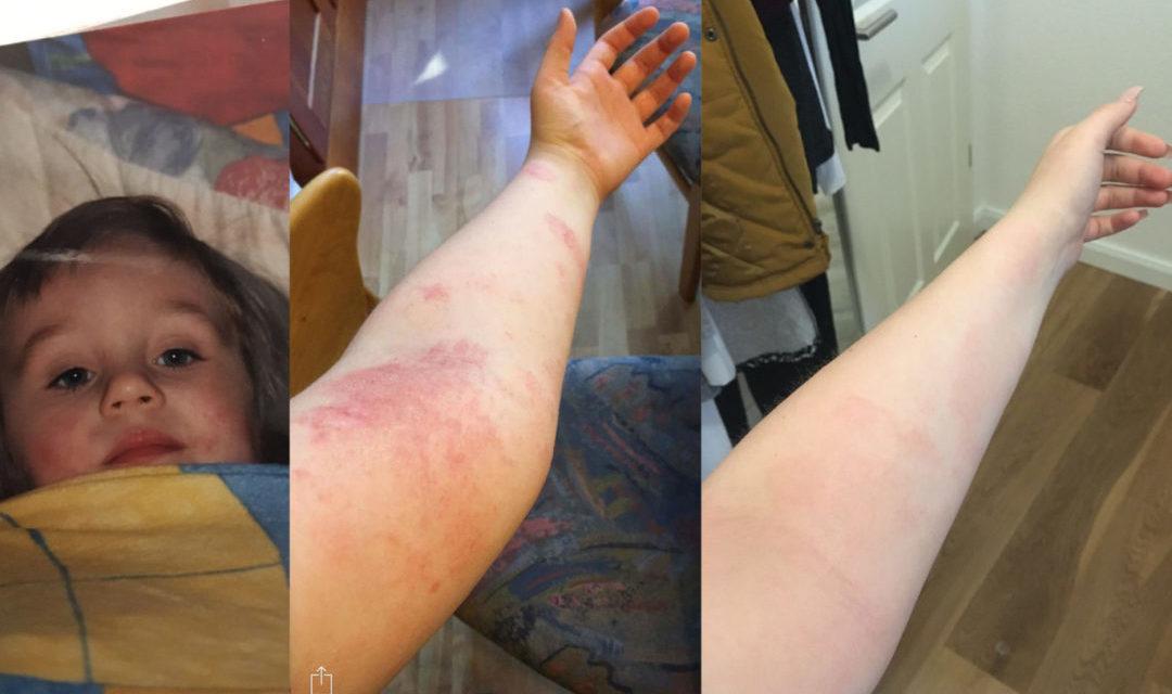 Neurodermitis Behandlung – wie ich es geschafft habe!